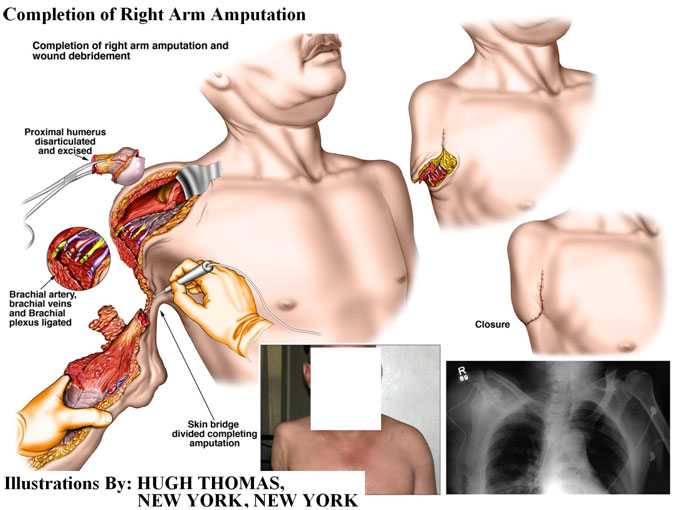 Completion of Right Arm Amputation
