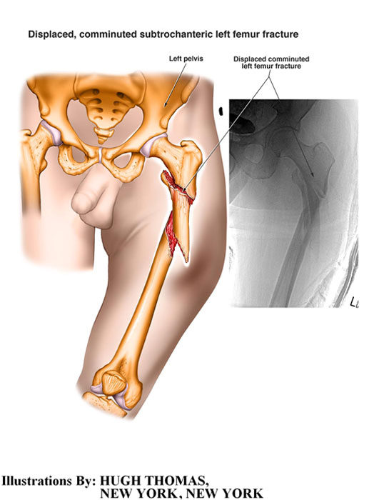 Displaced, comminuted subtrochateric left femur fracture