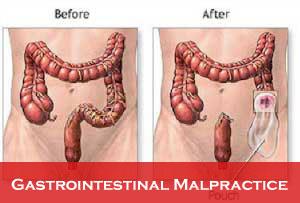 Gastrointestinal-Malpractice
