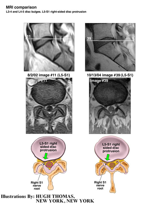 MRI comparison - L3-4 and L4-5 bulges