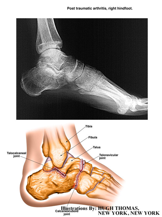 Post traumatic arthritis, right hindfoot
