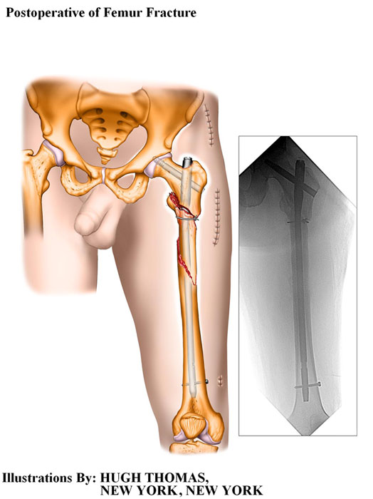 Postoperative of Femur Fracture