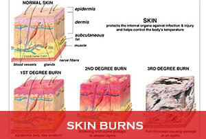 Skin-Burns