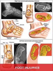 Foot-Injuries