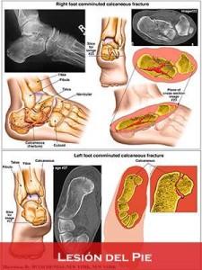Lesión del Pie