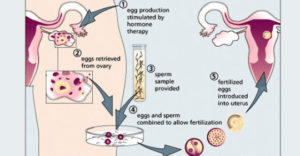 Sofia Vegara Embryo Lawsuit